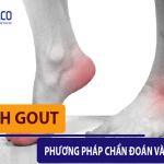 [ Bệnh Gout ] Phương pháp chẩn đoán và điều trị bạn không thể bỏ qua