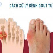 Cách xử lý cơn đau bệnh Gout một cách tự nhiên