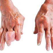 Cách điều trị bệnh gout, thuốc có thể chữa khỏi được bệnh không?