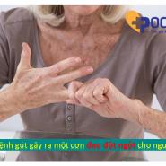 5++ triệu chứng phổ biến nhất của bệnh gút BẠN ĐÃ NẮM RÕ?