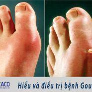 Bạn thực sự hiểu về căn bệnh Gout?