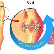 Hiểu được nguyên nhân và cách điều trị bệnh gout tự nhiên