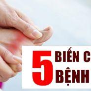 5 biến chứng bệnh gút bạn cần biết