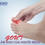 Bệnh gút & các phương pháp điều trị giúp bạn kiểm soát tốt cơn đau