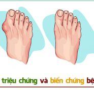 [THÔNG TIN VỀ BỆNH GÚT] Những triệu chứng & biến chứng của bệnh gút bạn nên biết