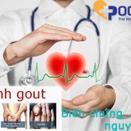 Mức độ nguy hiểm của bệnh gout - các chuyên gia khuyên nên sử dụng biện pháp ngăn ngừa nào?