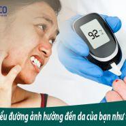 Bệnh tiểu đường: Nguyên nhân khiến da của bạn bị tổn thương