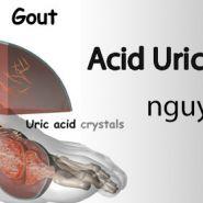 Những nguyên nhân gây ra bệnh gout mà bạn phải tránh xa