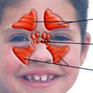 Bệnh viêm xoang sàng ở trẻ em