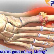 Phương pháp điều trị dứt điểm bệnh gout-có hay không?