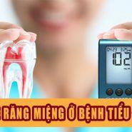 Lời khuyên giúp bảo vệ răng miệng của bạn tránh biến chứng do bệnh tiểu đường