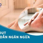 Ngăn ngừa bệnh gout: hướng dẫn tuyệt vời dành cho bạn!
