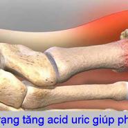 [BIỆN PHÁP] Kiểm soát tình trạng tăng acid uric giúp phòng ngừa bệnh gút