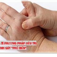 """Cách điều trị bệnh gút nhanh chóng? Khám phá 11 phương pháp điều trị bệnh gút """"phổ biến"""""""