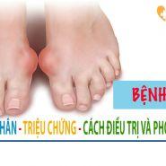 [ Bệnh Gout] Nguyên nhân – triệu chứng – cách điều trị và phòng ngừa