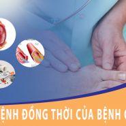 Bệnh đồng thời và những thực phẩm dành riêng cho bệnh Gout