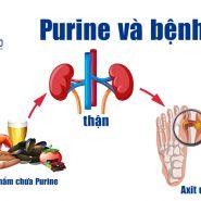 Purines là gì? Nó ảnh hưởng đến bệnh Gút như thế nào?