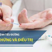 [Bệnh tiểu đường] Các biến chứng của bệnh và một số phương pháp điều trị