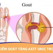 Axit uric chắc chắn sẽ gây ra bệnh gout?  Làm thế nào để hạn chế axit uric tăng trong máu?