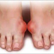 mẹo chữa trị bệnh gout - Câu chuyện của bà Thúy (ở Huế)