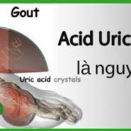 Bệnh gout có điều trị được không?