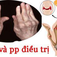 Nhận biết nhanh dấu hiệu bệnh gout & phương pháp điều trị hiệu quả