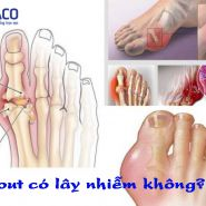 Bệnh gout có lây nhiễm hay không? Nhận biết để biết cách phòng ngừa hiệu quả