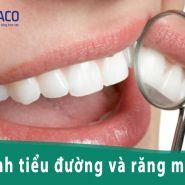 Bệnh tiểu đường ảnh hưởng đến răng của bạn như thế nào?
