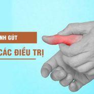 Phương pháp giảm đau do viêm khớp ở bệnh nhân gút
