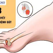 Điều trị bệnh gút: 8 bí quyết không thể bỏ qua