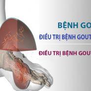 Làm thế nào để điều trị bệnh gout mãn tính và bệnh gout cấp tính?
