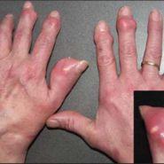 Điều Trị Bệnh Gout, câu chuyện của một người đặc biệt