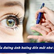 Bệnh tiểu đường ảnh hưởng đến mắt của bạn như thế nào?