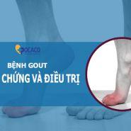 Các triệu chứng của bệnh gout là gì? Làm thế nào để phòng ngừa và điều trị?