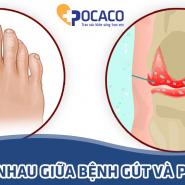 Pseudo gout và Gout: Sự khác biệt giữa bệnh gout và bệnh giả gout