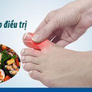 Bệnh Gout: Triệu chứng & cách điều trị tốt nhất