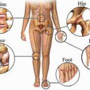 Nguyên nhân và biểu hiện của bệnh gout có khó phát hiện không