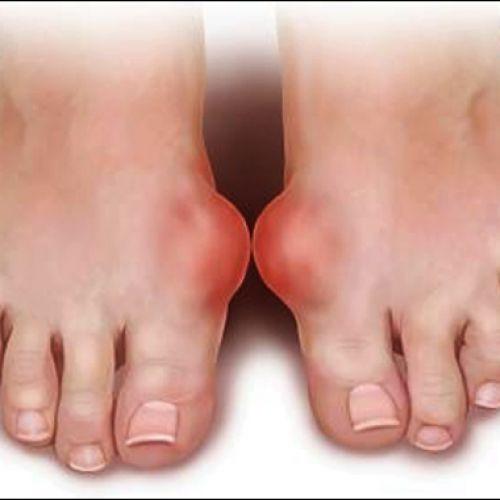 Cách trị bệnh gout, giải pháp phòng tránh hiệu quả nhất