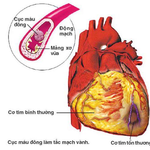 Điều trị tim mạch tiểu đường – Nguyên nhân của cơn đột quỵ!