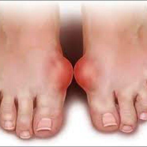 Điều trị bệnh gout,  và áp dụng đúng cách bạn sẽ nói lời tạm biệt gút