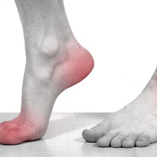Điều trị bệnh gout bằng phương pháp nào hiệu quả nhất BẠN ĐÃ BIẾT