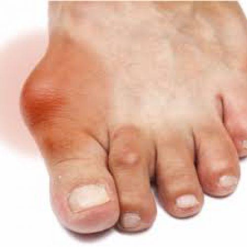 Phương thuốc chữa trị bệnh gout của chuyên gia hàng đầu thế giới