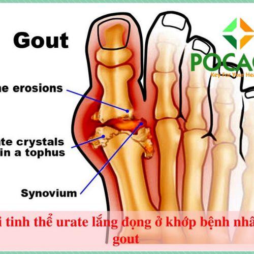 Tiêu chí tìm phương pháp điều trị gout như thế nào là phù hợp