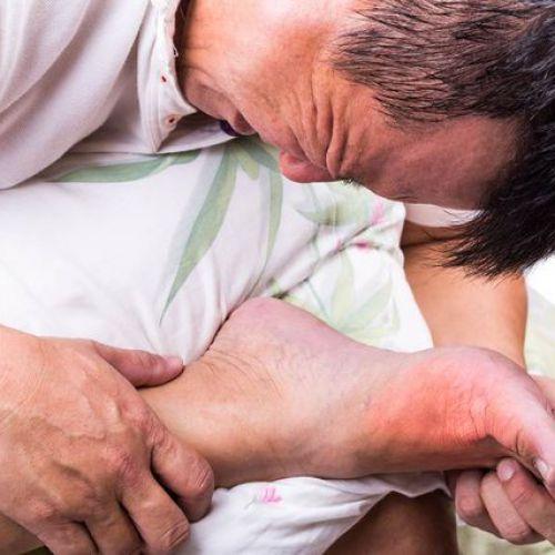 các loại tây y điều trị bệnh gout - được bác sĩ kê đơn