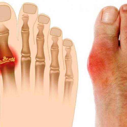 Phương pháp điều trị bệnh gout theo công thức từ chuyên gia Mỹ